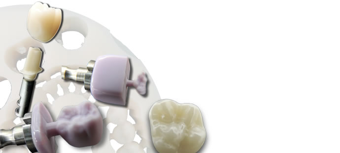 WORKNC DENTAL CAD/CAM Software
